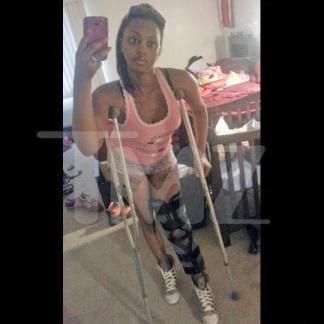 deanna-gines-on-crutches